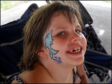 Нина - ребенок, страдающий аутизмом