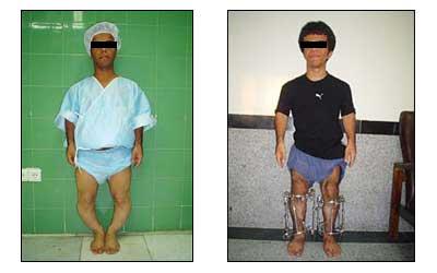 مرکز عمل جراحی افزایش قد