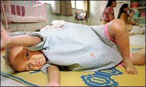 A Aids deixou muitas crianças órfãs