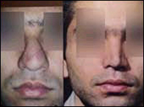هزینه عمل بینی دکتر یوشی
